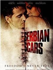 Serbian Scars