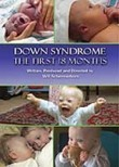 Down Syndrome: The First 18 Months
