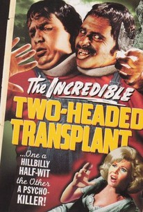 The Incredible Two-Headed Transplant