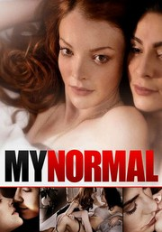 My Normal
