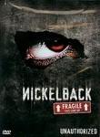 Nickelback: Fragile This Side Up: Unauthorized